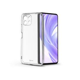 Xiaomi Mi 11 Lite LTE/11 Lite 5G szilikon hátlap - Roar All Day Full 360 - transparent