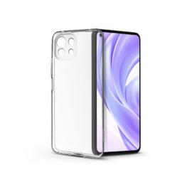 Xiaomi Mi 11 Lite LTE/11 Lite 5G szilikon hátlap - Soft Clear - transparent